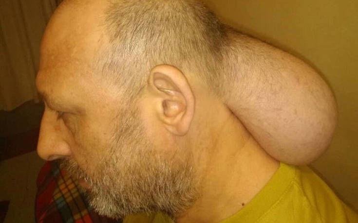 Η απάντηση του υπουργείου για τον κρατούμενο με τον τεράστιο όγκο από τις φυλακές Νιγρίτας