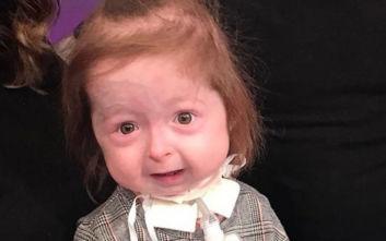 Το 2χρονο κορίτσι που γερνά πρόωρα