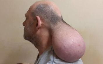 Κρατούμενος στις φυλακές Νιγρίτας Σερρών έχει όγκο που μοιάζει με... δεύτερο κεφάλι