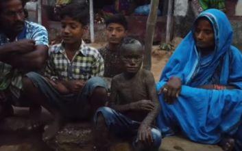 Δεκάχρονο αγόρι στην Ινδία με δέρμα φιδιού: Η σπάνια ασθένεια και οι σοκαριστικές εικόνες