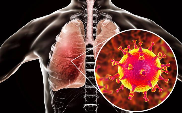 Έλληνας καθηγητής του Johns Hopkins αναλύει τις επιπτώσεις του κορονοϊού στους πνεύμονες