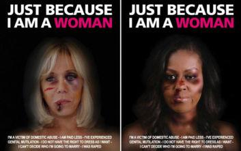 Με μώλωπες στο πρόσωπο η Μπριζίτ Μακρόν και η Μισέλ Ομπάμα «επειδή απλώς είναι γυναίκες»