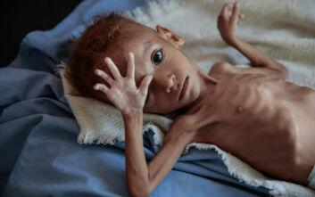 Υεμένη: Ο ΟΗΕ εξετάζει τον περιορισμό των ανθρωπιστικών δραστηριοτήτων σε περιοχές που ελέγχουν οι Χούτι