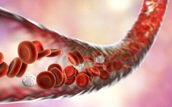 Μικροσκοπικά ρομπότ θα καθαρίζουν κάποτε τα αιμοφόρα αγγεία μας