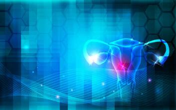 Βρέθηκαν μεταλλαγμένα γονίδια υπεύθυνα για τον καρκίνο της μήτρας