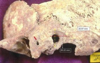 Αρχαιολογική ανακάλυψη στη Θάσο: Στο φως κρανίο πρωτοβυζαντινής περιόδου με ίχνη πολύπλοκης χειρουργικής επέμβασης