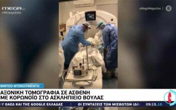 Συγκλονιστικό βίντεο με αξονική τομογραφία σε ασθενή με κορoνοϊό στο Ασκληπιείο Βούλας