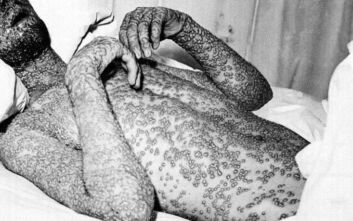 Όταν η επιδημία της ευλογιάς συγκλόνισε τη Γιουγκοσλαβία το 1972