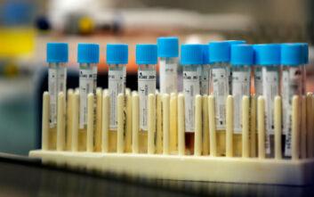 Ιαπωνία: Ασαφή τα αποτελέσματα δοκιμής του φαρμάκου Avigan κατά του κορονοϊού