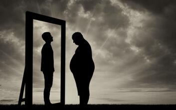 Η σύγκρουση δύο «πανδημιών»: Γιατί η παχυσαρκία αυξάνει τον κίνδυνο να νοσήσει κάποιος βαρύτερα από τον κορονοϊό