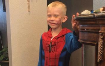 Ήρωες της Marvel αποθεώνουν τον 6χρονο που προστάτευσε την αδερφή του από επίθεση σκύλου