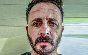 Ανάρτηση «γροθιά» γιατρού του ΠΑΓΝΗ: Κάποιοι αρνούνται να χρησιμοποιήσουν μάσκα, εμείς παρακαλάμε κάθε μέρα να την έχουμε