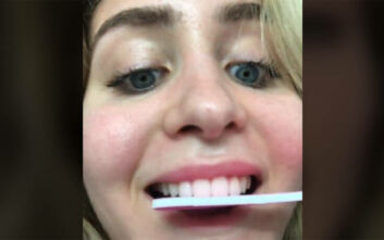 Σάλος για τη νέα μόδα στο TikTok: Έφηβοι λιμάρουν τα δόντια τους