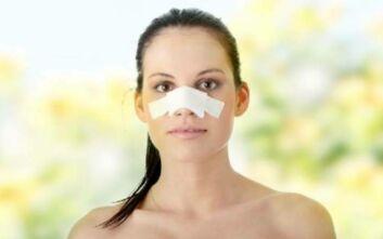 Ρινοπλαστική-πλαστική μύτης
