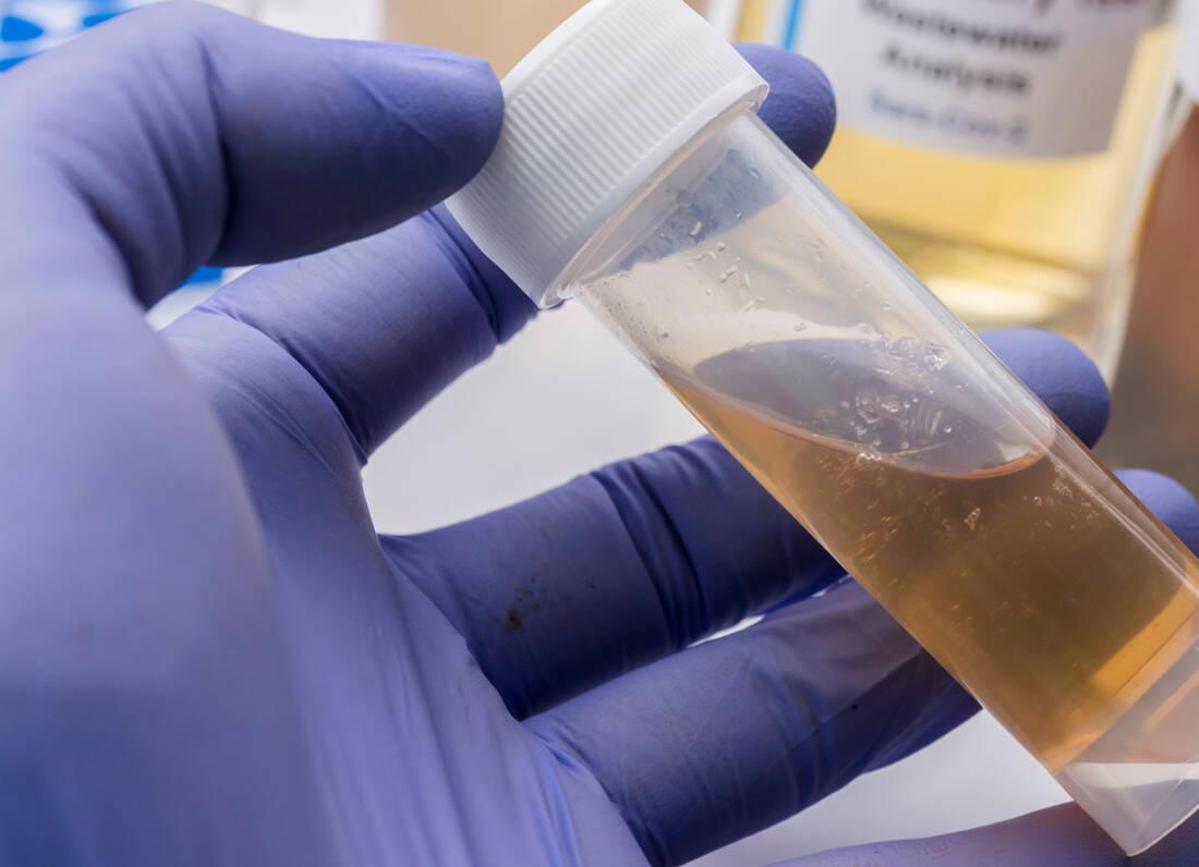 Τι δείχνουν τα λύματα για τον κορονοϊό και τα κρούσματα για την πορεία της πανδημίας
