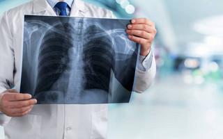 Απαραίτητος ο πνευμονολογικός έλεγχος 3 μήνες μετά τη βαριά νόσηση με κορονοϊό