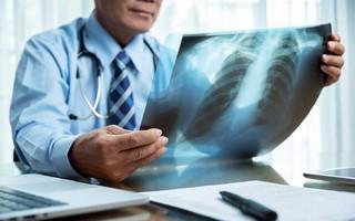 Σύστημα τεχνητής νοημοσύνης μπορεί να διαγνώσει τον καρκίνο των πνευμόνων έως και ένα χρόνο νωρίτερα