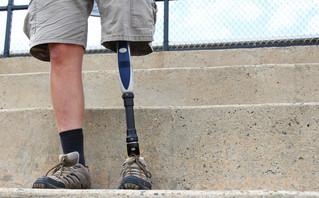 Στέκεται άνθρωπος με προσθετικό πόδι